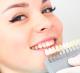 Студия косметического отбеливания зубов в центре Москвы